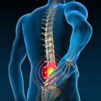 Douleurs lombaires, est-ce toujours une sciatique ou une lombalgie?